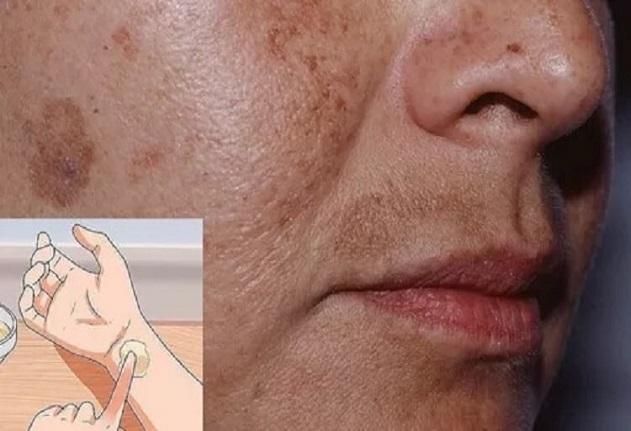 петна по кожата