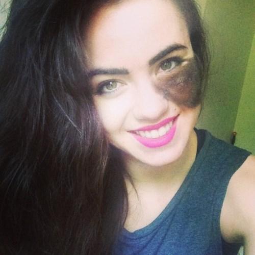 dancer-with-face-birthmark-cassandra-naud-17-605x605