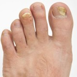 гъбички по ноктите