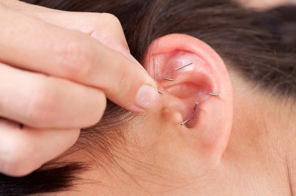 Ушна терапия