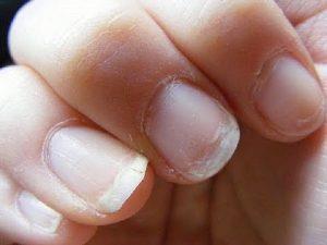 чупливи нокти